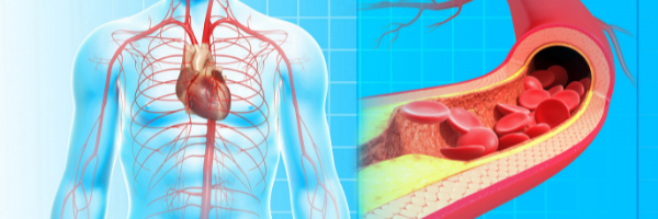Advanced Testing to Prevent and Reverse Artery Plaque